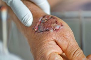 dog attack stitches